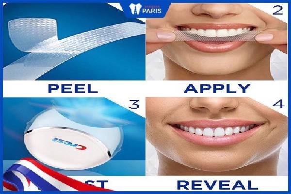 4 bước làm trắng răng bằng máy