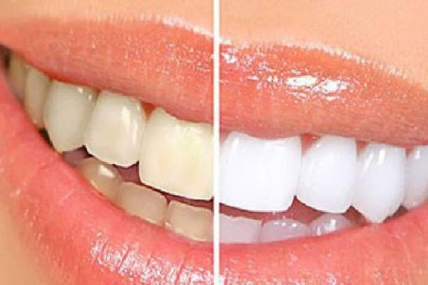 Hiệu quả máy làm trắng răng đem lại