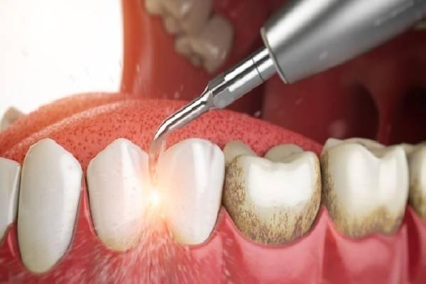 Lấy cao răng thường xuyên là điều nên làm