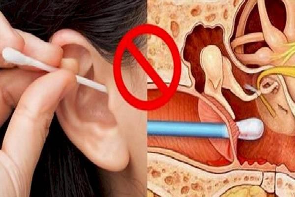 Những nguy hại của việc ngoáy tai