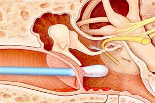 Ngoáy tai bằng tăm bông gây thủng màng nhĩ