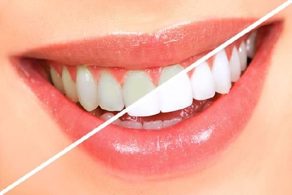 Răng trắng mang lại cho bạn nhiều sự tự tin