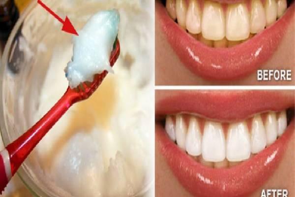Răng trắng sáng với baking soda