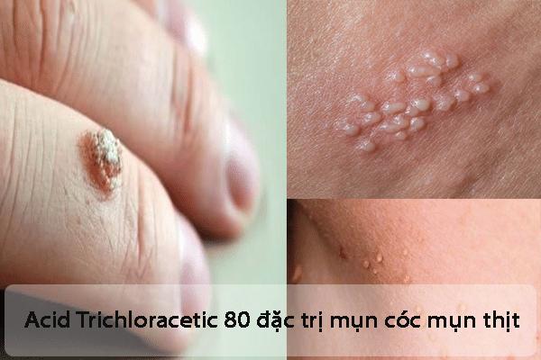 Acid Trichloracetic 80 đặc trị mụn cóc, mụn thịt, sùi mào gà
