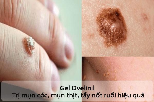 Công dụng của Gel Dvelinil